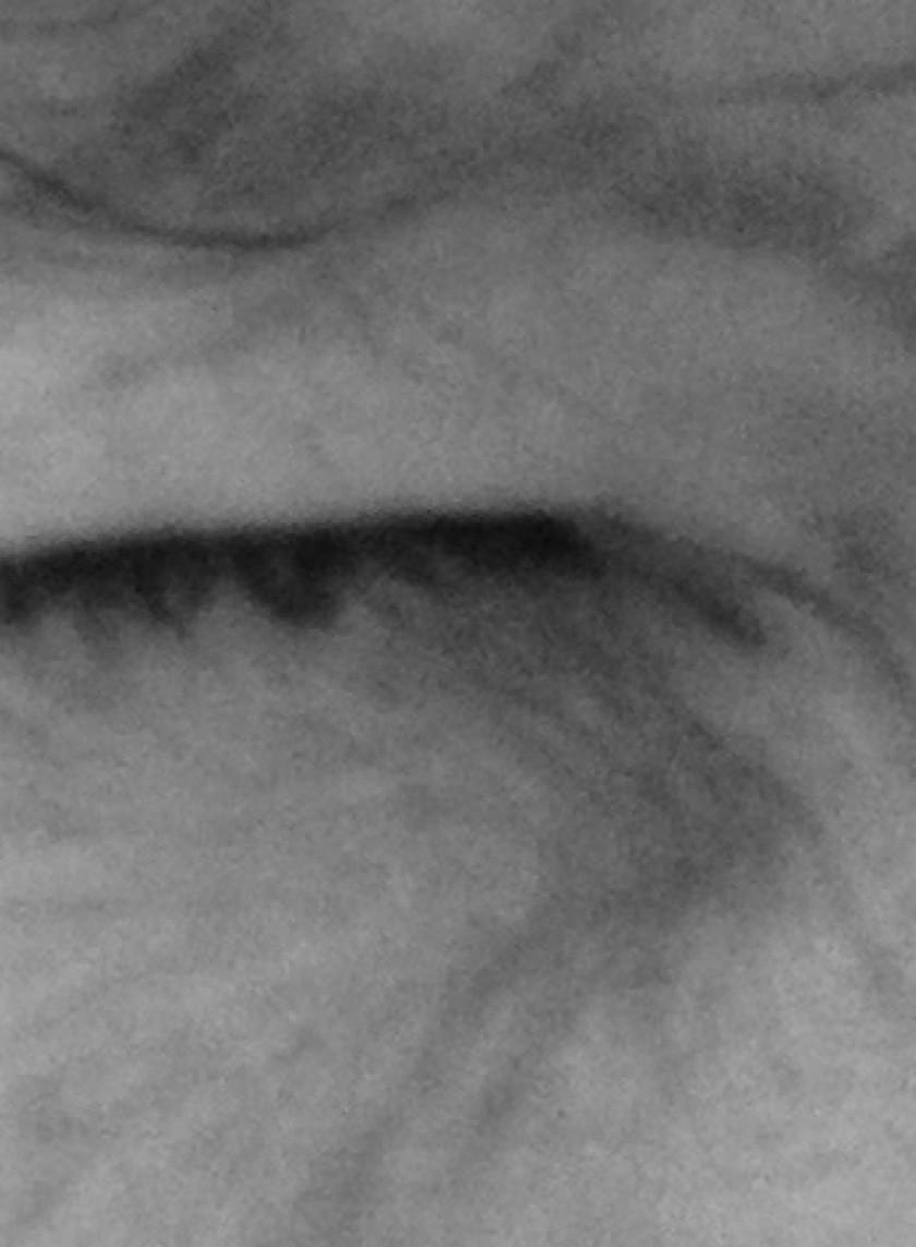 cropped-closed-eye-copy.jpg